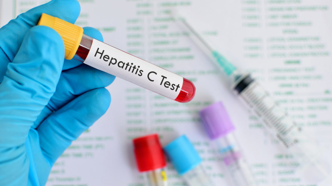 Hepatitis C Test Vorsorge Behandlungsmöglichkeiten Symptome